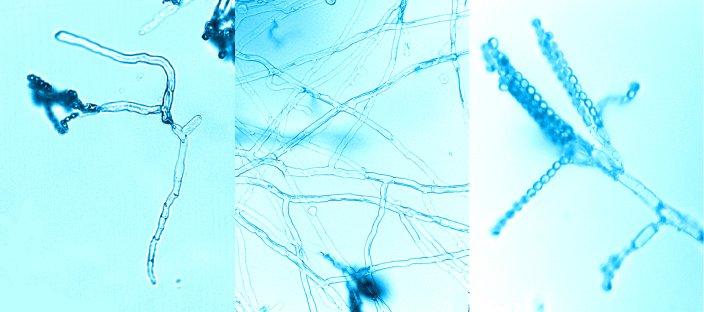 Bild: Aus einer Spore entsteht eine Hyphe, aus Hyphen ein Myzel & im Myzel entstehen Konidienträger